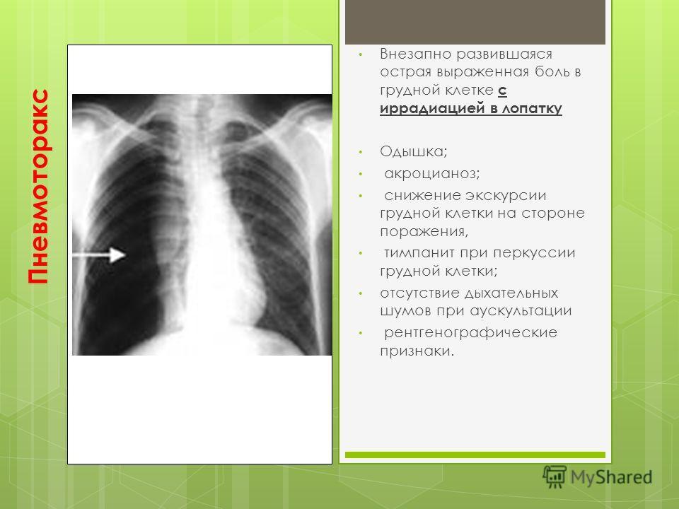 Пневмоторакс Внезапно развившаяся острая выраженная боль в грудной клетке с иррадиацией в лопатку Одышка; акроцианоз; снижение экскурсии грудной клетки на стороне поражения, тимпанит при перкуссии грудной клетки; отсутствие дыхательных шумов при ауск