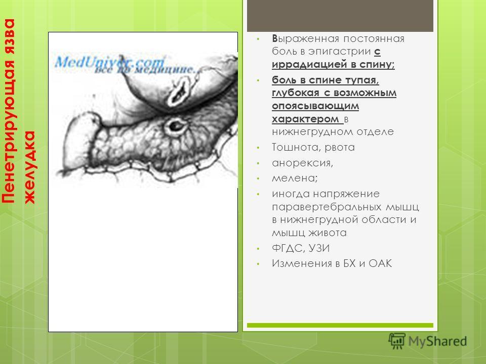 Пенетрирующая язва желудка В ыраженная постоянная боль в эпигастрии с иррадиацией в спину; боль в спине тупая, глубокая с возможным опоясывающим характером в нижнегрудном отделе Тошнота, рвота анорексия, мелена; иногда напряжение паравертебральных мы