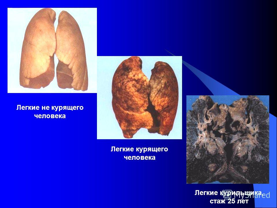 Легкие не курящего человека Легкие курящего человека Легкие курильщика, стаж 25 лет
