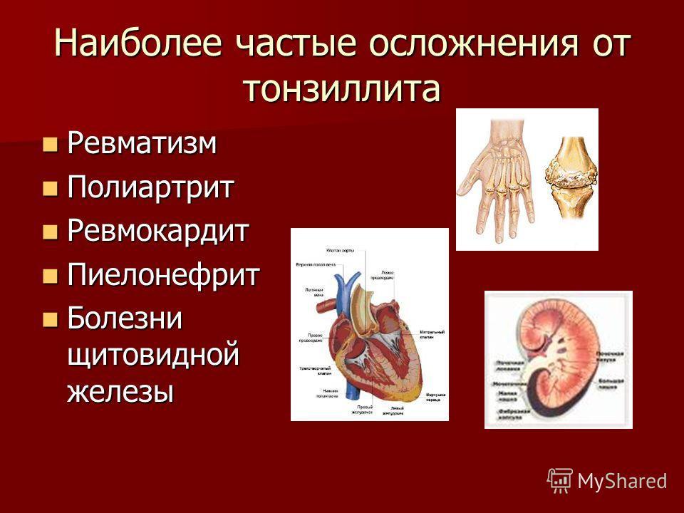 Наиболее частые осложнения от тонзиллита Ревматизм Ревматизм Полиартрит Полиартрит Ревмокардит Ревмокардит Пиелонефрит Пиелонефрит Болезни щитовидной железы Болезни щитовидной железы