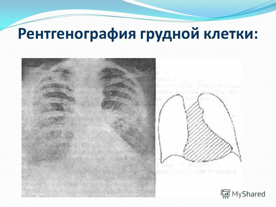 Рентгенография грудной клетки: