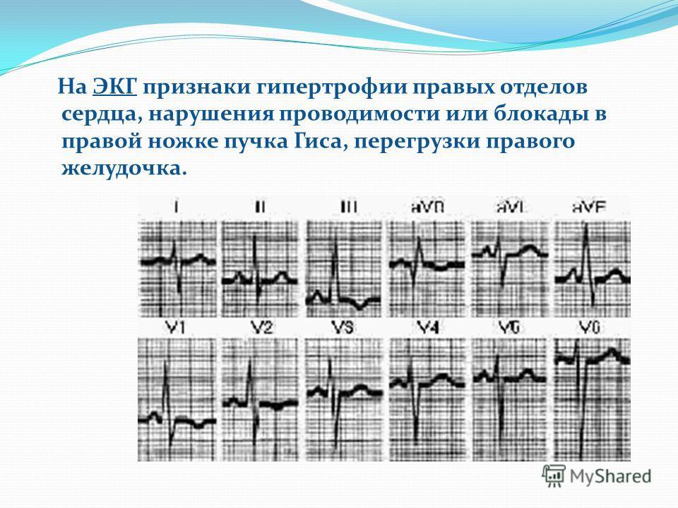 На ЭКГ признаки гипертрофии правых отделов сердца, нарушения проводимости или блокады в правой ножке пучка Гиса, перегрузки правого желудочка.