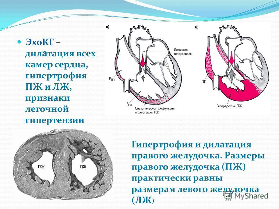 ЭхоКГ – дил а тация всех камер сердца, гипертрофия ПЖ и ЛЖ, признаки легочной гипертензии Гипертрофия и дилатация правого желудочка. Размеры правого желудочка (ПЖ) практически равны размерам левого желудочка (ЛЖ )
