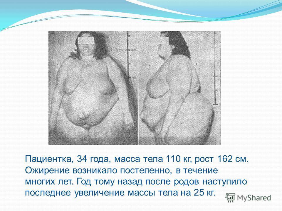 Пациентка, 34 года, масса тела 110 кг, рост 162 см. Ожирение возникало постепенно, в течение многих лет. Год тому назад после родов наступило последнее увеличение массы тела на 25 кг.