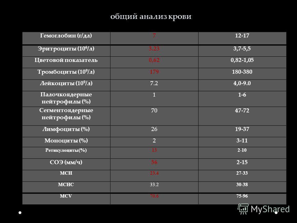 общий анализ крови Гемоглобин (г/дл)712-17 Эритроциты (10 6 /л)3.233,7-5,5 Цветовой показатель0,620,82-1,05 Тромбоциты (10 9 /л)179180-380 Лейкоциты (10 9 /л)7.24,0-9.0 Палочкоядерные нейтрофилы (%) 11-6 Сегментоядерные нейтрофилы (%) 7047-72 Лимфоци
