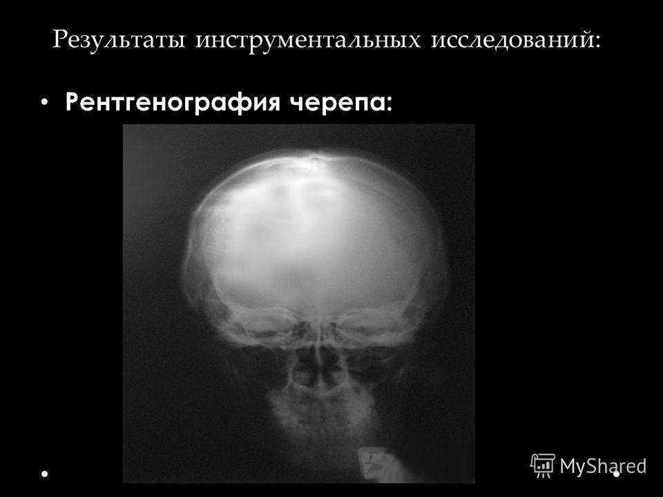 Результаты инструментальных исследований: Рентгенография черепа: