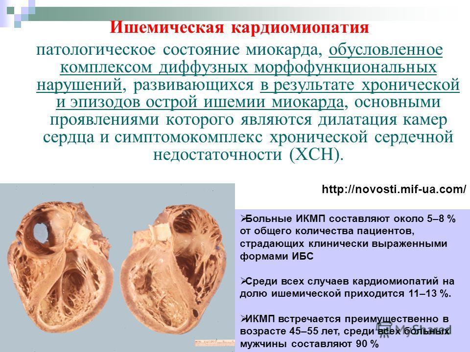"""Презентация на тему: """"ИШЕМИЧЕСКАЯ КАРДИОМИОПАТИЯ Выполнила ..."""