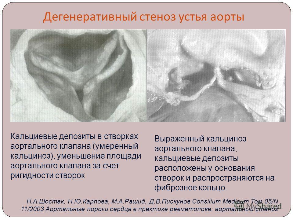 Дегенеративный стеноз устья аорты Выраженный кальциноз аортального клапана, кальциевые депозиты расположены у основания створок и распространяются на фиброзное кольцо. Кальциевые депозиты в створках аортального клапана (умеренный кальциноз), уменьшен
