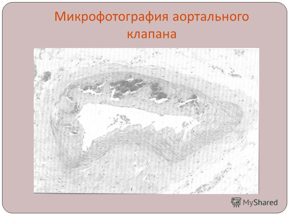 Микрофотография аортального клапана