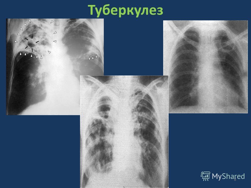 Туберкулез 8