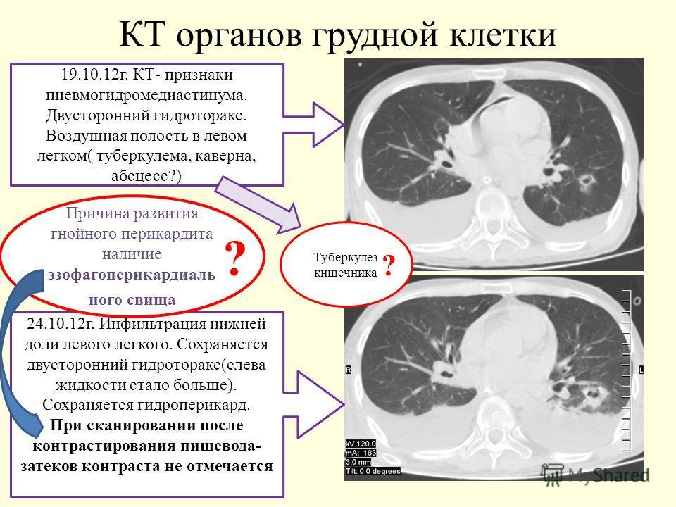КТ органов грудной клетки 19.10.12г. КТ- признаки пневмогидромедиастинума. Двусторонний гидроторакс. Воздушная полость в левом легком( туберкулема, каверна, абсцесс?) 24.10.12г. Инфильтрация нижней доли левого легкого. Сохраняется двусторонний гидрот