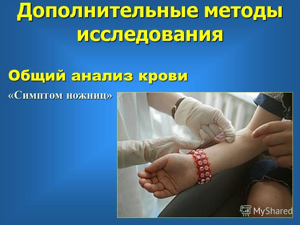 Общий анализ крови «Симптом ножниц» Дополнительные методы исследования