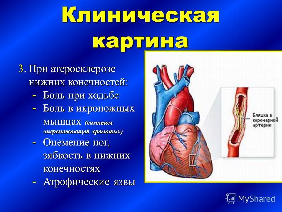 Клиническая картина 3.При ...: www.myshared.ru/slide/549917