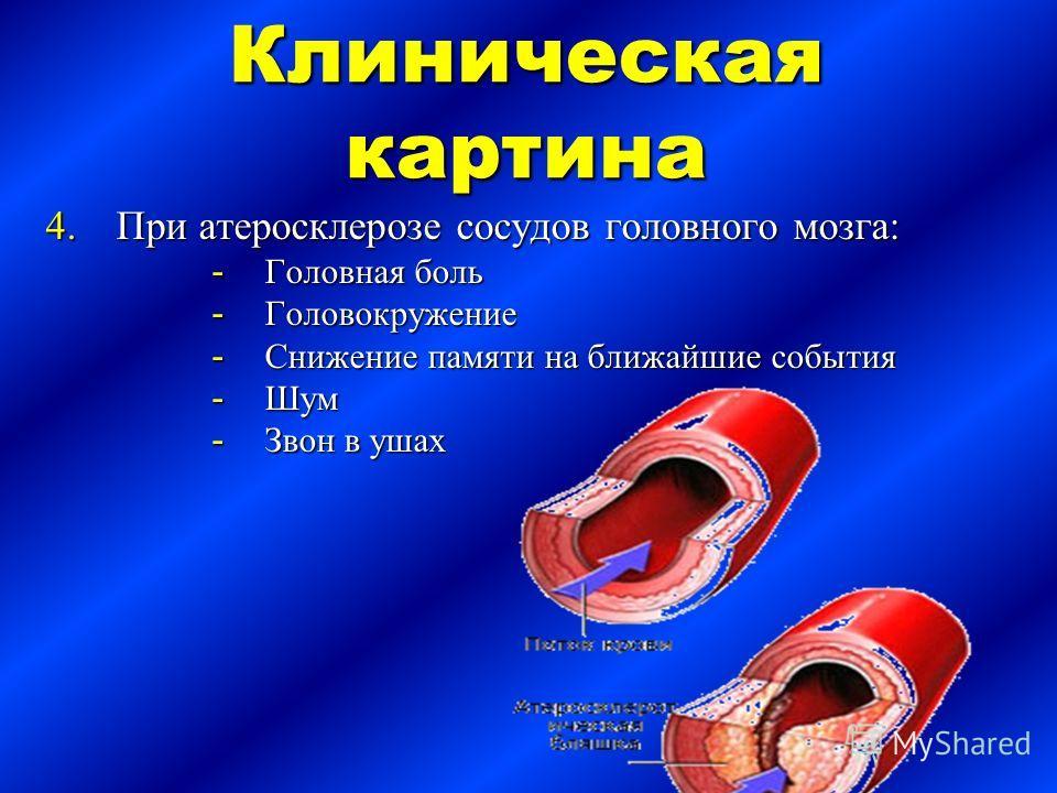 Клиническая картина 4.При атеросклерозе сосудов головного мозга: - Головная боль - Головокружение - Снижение памяти на ближайшие события - Шум - Звон в ушах