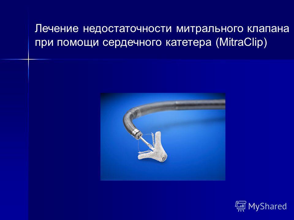 Лечение недостаточности митрального клапана при помощи сердечного катетера (MitraClip)