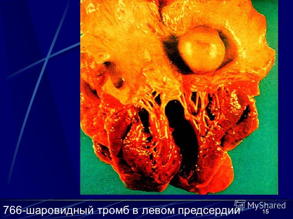 15 766-шаровидный тромб в левом предсердии