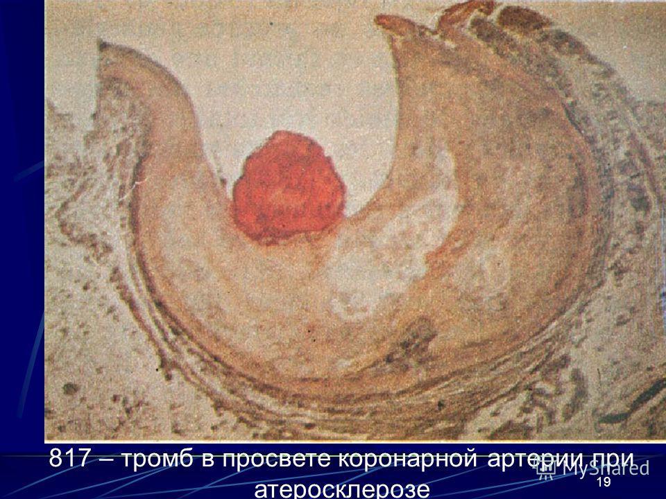19 817 – тромб в просвете коронарной артерии при атеросклерозе