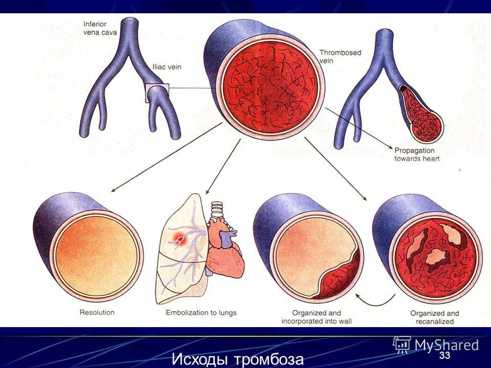 33 Исходы тромбоза