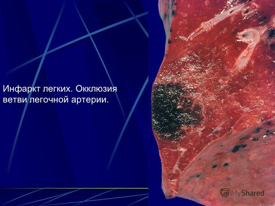 52 Инфаркт легких. Окклюзия ветви легочной артерии.
