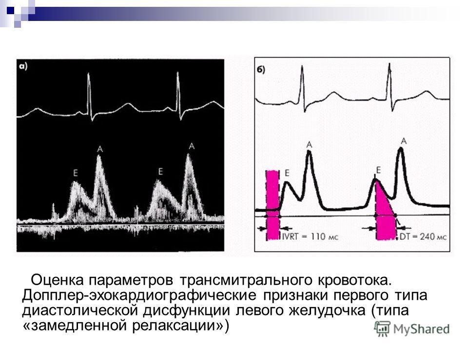 Оценка параметров трансмитрального кровотока. Допплер-эхокардиографические признаки первого типа диастолической дисфункции левого желудочка (типа «замедленной релаксации»)