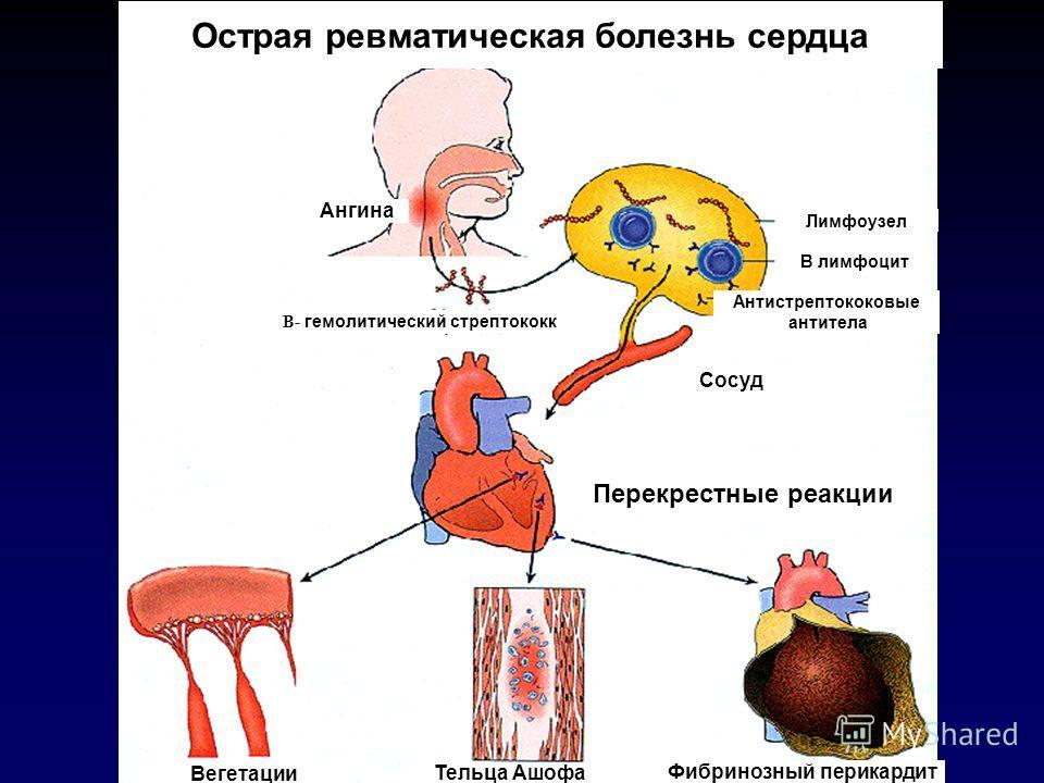 Как лечить бактериальную ангину при беременности