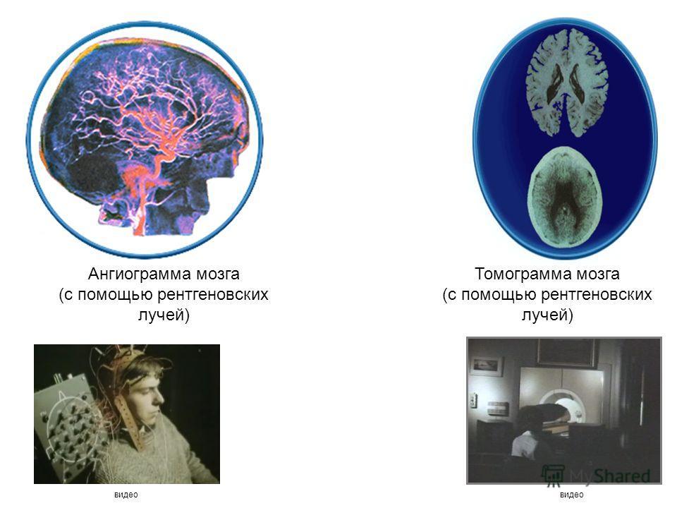 Ангиограмма мозга (с помощью рентгеновских лучей) Томограмма мозга (с помощью рентгеновских лучей) видео