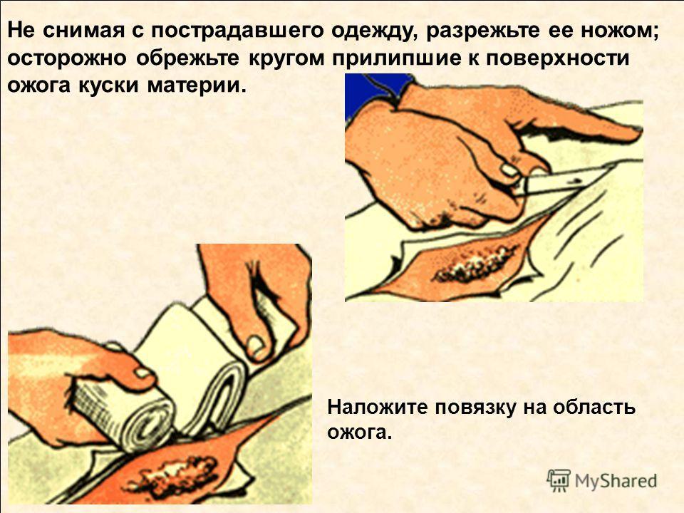 Потушить горящую одежду на пострадавшем Наложите повязку на область ожога. Не снимая с пострадавшего одежду, разрежьте ее ножом; осторожно обрежьте кругом прилипшие к поверхности ожога куски материи.