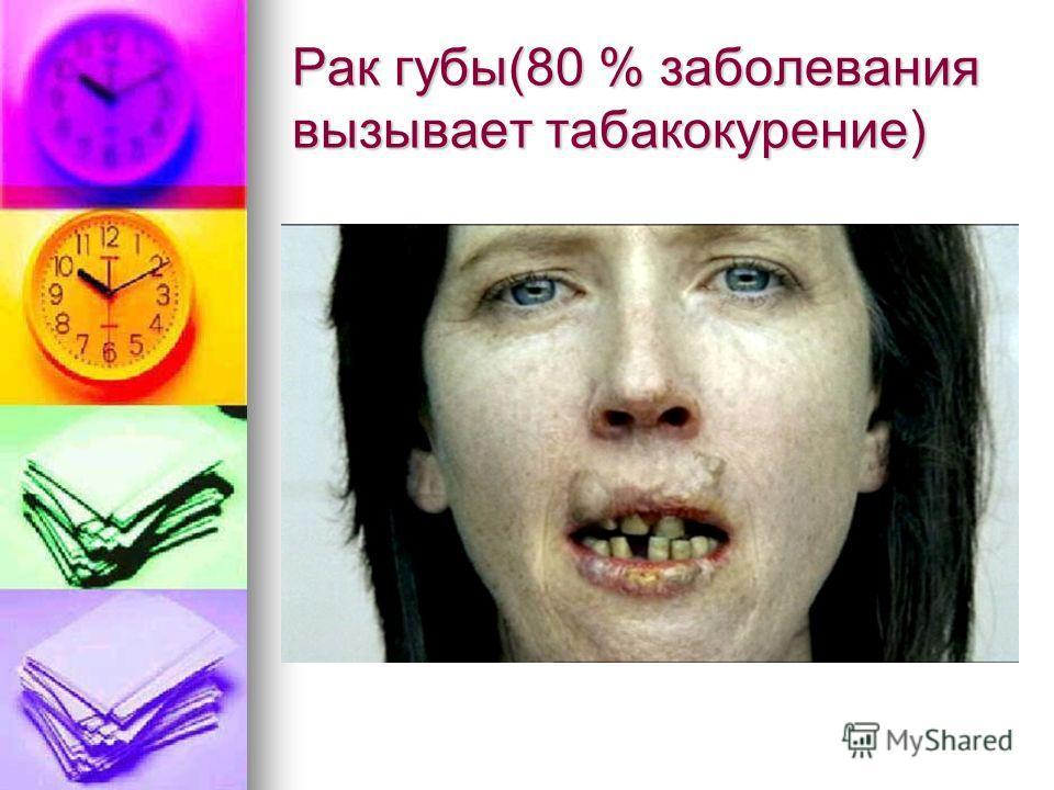 Рак губы(80 % заболевания вызывает табакокурение)