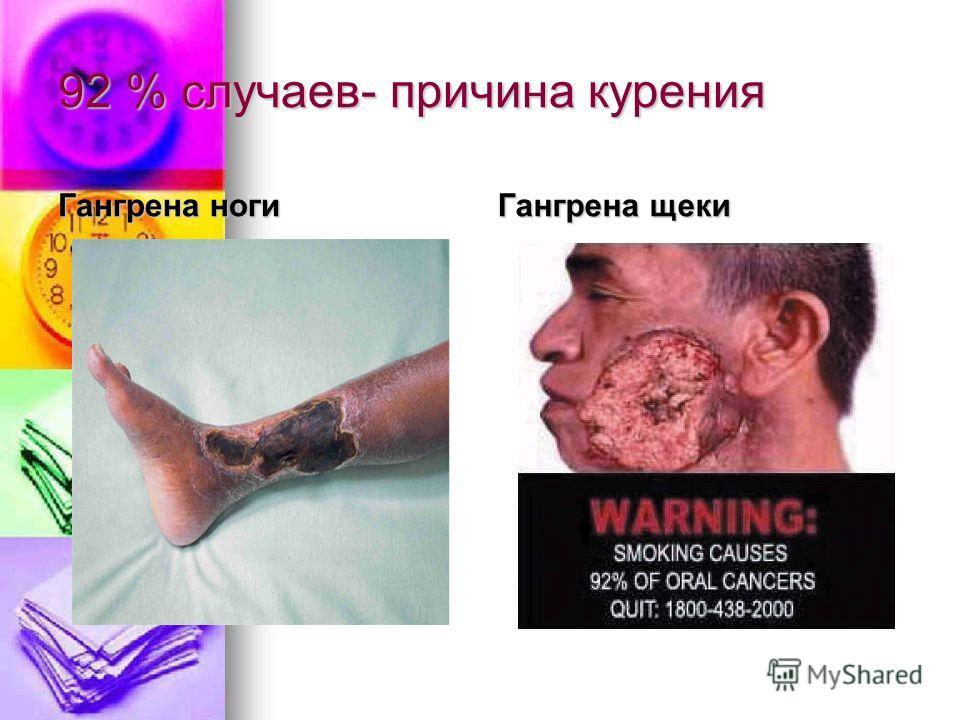92 % случаев- причина курения Гангрена ноги Гангрена щеки