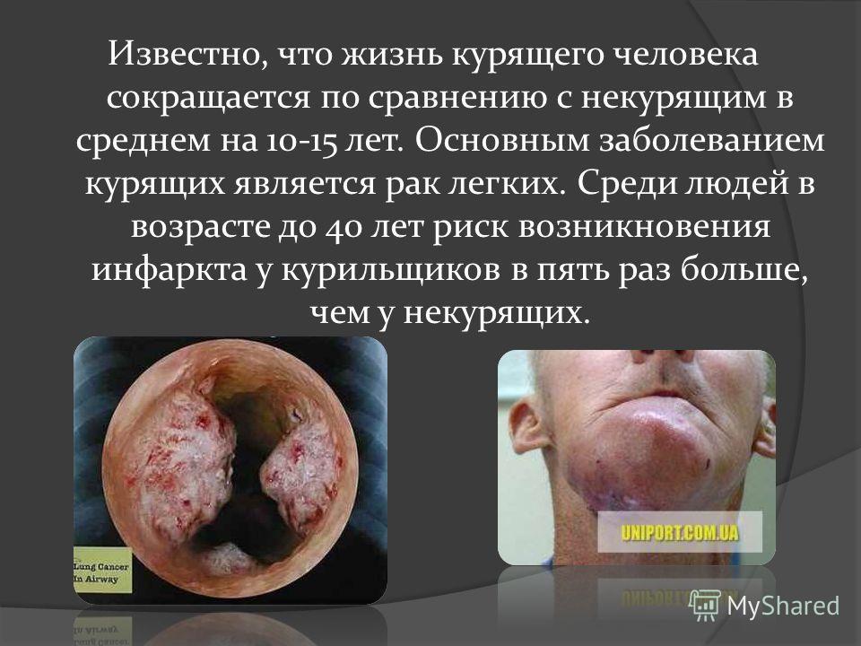 Известно, что жизнь курящего человека сокращается по сравнению с некурящим в среднем на 10-15 лет. Основным заболеванием курящих является рак легких. Среди людей в возрасте до 40 лет риск возникновения инфаркта у курильщиков в пять раз больше, чем у