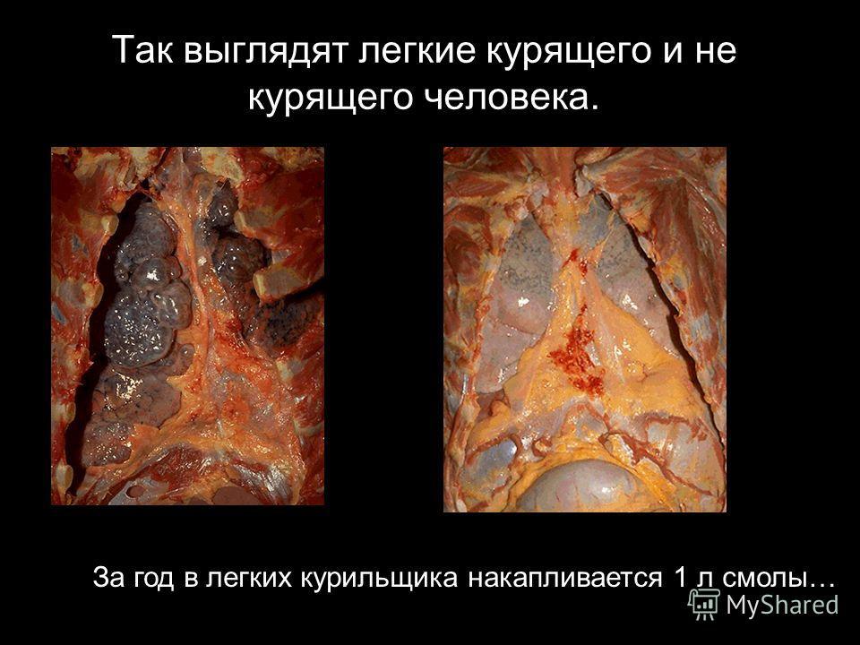 Так выглядят легкие курящего и не курящего человека. За год в легких курильщика накапливается 1 л смолы…