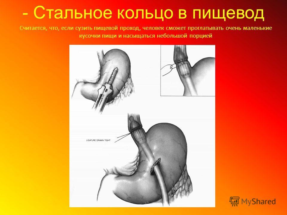 - Стальное кольцо в пищевод Считается, что, если сузить пищевой проход, человек сможет проглатывать очень маленькие кусочки пищи и насыщаться небольшой порцией