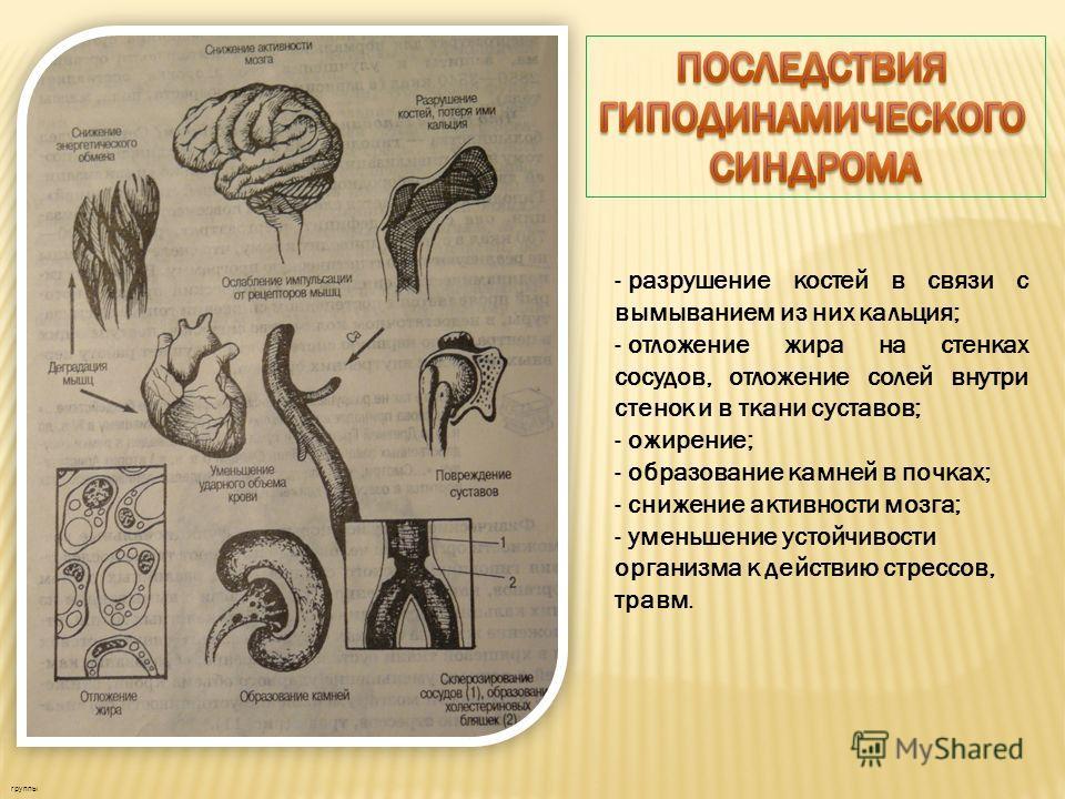 - разрушение костей в связи с вымыванием из них кальция; - отложение жира на стенках сосудов, отложение солей внутри стенок и в ткани суставов; - ожирение; - образование камней в почках; - снижение активности мозга; - уменьшение устойчивости организм