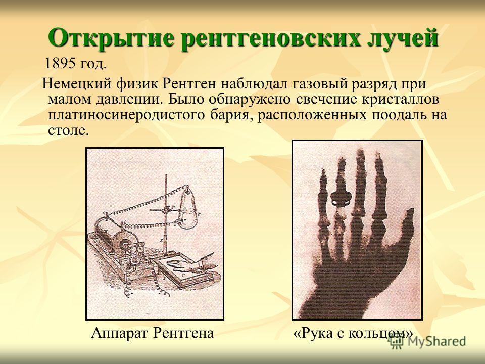 Открытие рентгеновских лучей 1895 год. Немецкий физик Рентген наблюдал газовый разряд при малом давлении. Было обнаружено свечение кристаллов платиносинеродистого бария, расположенных поодаль на столе. «Рука с кольцом»Аппарат Рентгена