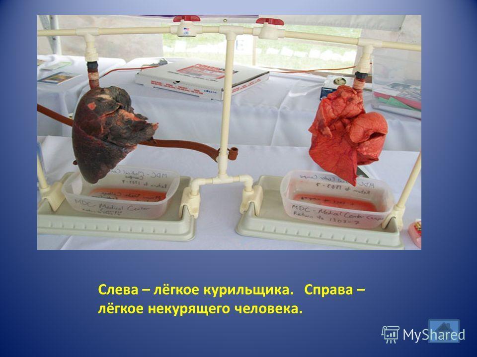 Слева – лёгкое курильщика. Справа – лёгкое некурящего человека.