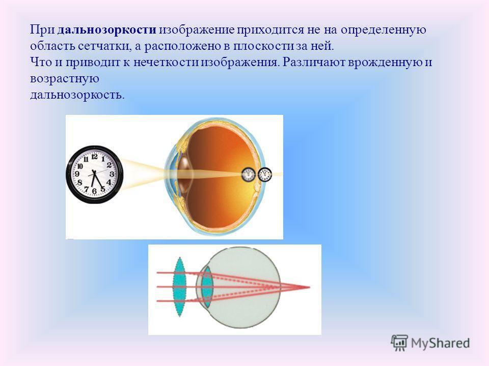 При дальнозоркости изображение приходится не на определенную область сетчатки, а расположено в плоскости за ней. Что и приводит к нечеткости изображения. Различают врожденную и возрастную дальнозоркость.