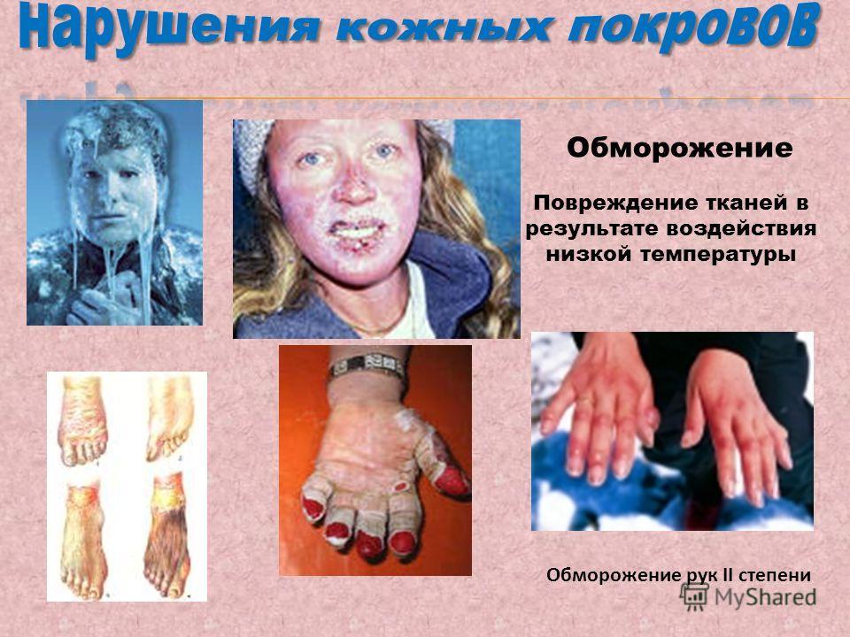 Обморожение Обморожение рук II степени Повреждение тканей в результате воздействия низкой температуры