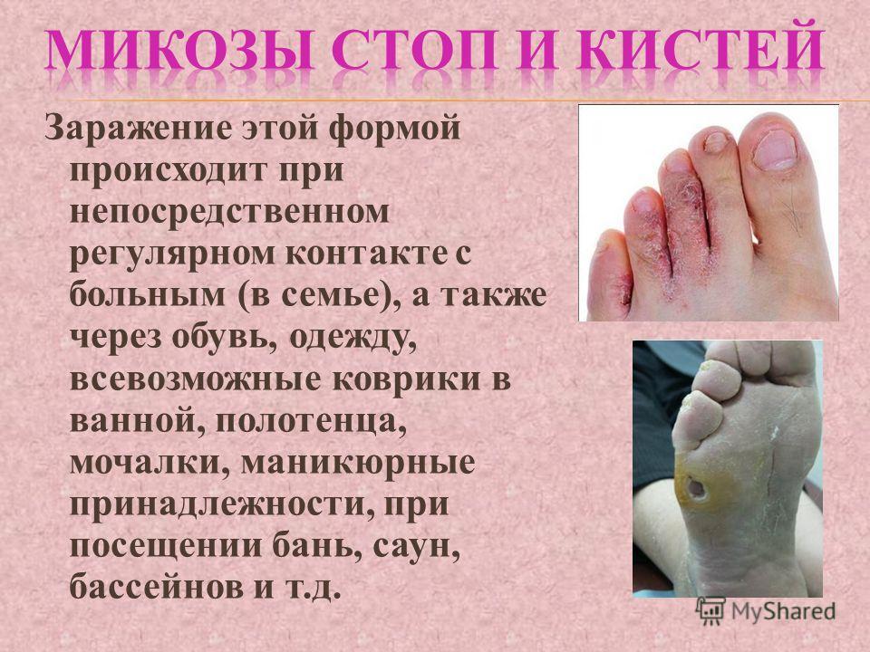 Заражение этой формой происходит при непосредственном регулярном контакте с больным (в семье), а также через обувь, одежду, всевозможные коврики в ванной, полотенца, мочалки, маникюрные принадлежности, при посещении бань, саун, бассейнов и т.д.