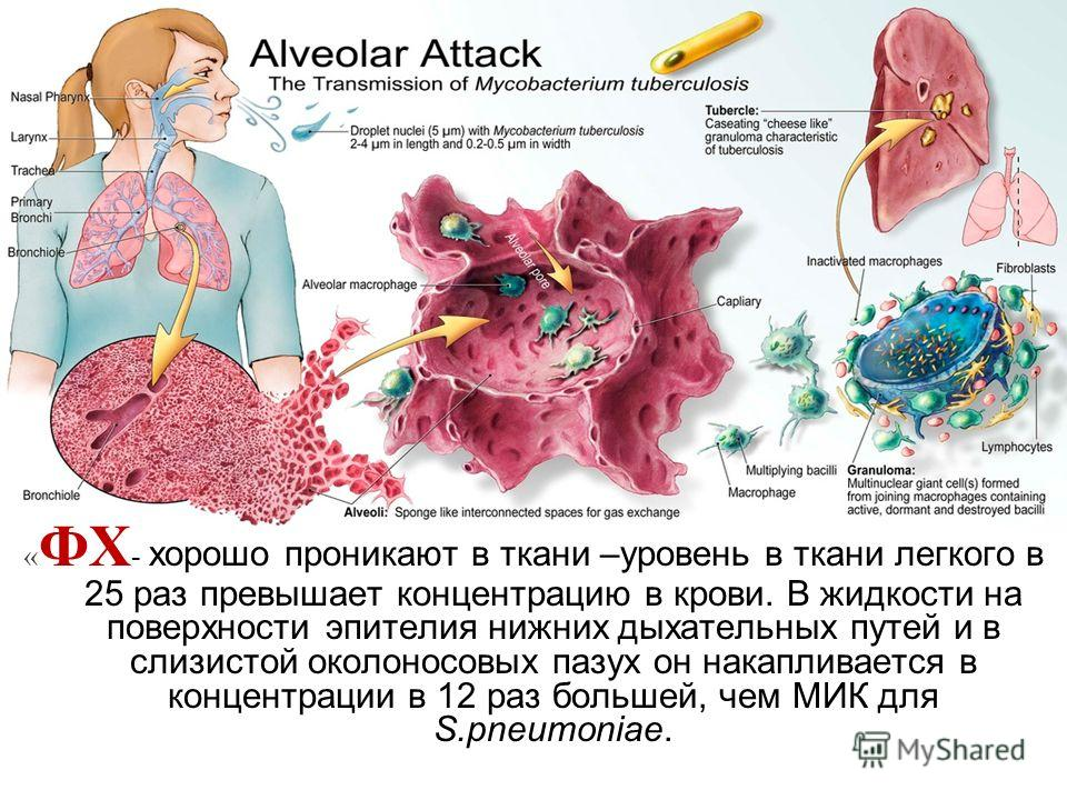 « ФХ - хорошо проникают в ткани –уровень в ткани легкого в 25 раз превышает концентрацию в крови. В жидкости на поверхности эпителия нижних дыхательных путей и в слизистой околоносовых пазух он накапливается в концентрации в 12 раз большей, чем МИК д