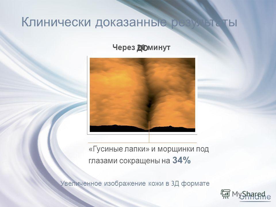 Клинически д оказанные р езультаты ДО Через 20 минут «Гусиные лапки» и морщинки под глазами сокращены на 34% Увеличенное изображение кожи в 3 Д формате