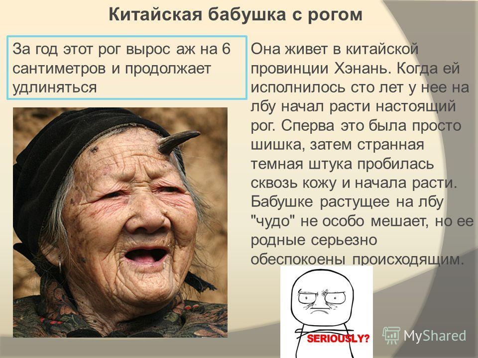 Китайская бабушка с рогом Она живет в китайской провинции Хэнань. Когда ей исполнилось сто лет у нее на лбу начал расти настоящий рог. Сперва это была просто шишка, затем странная темная штука пробилась сквозь кожу и начала расти. Бабушке растущее на