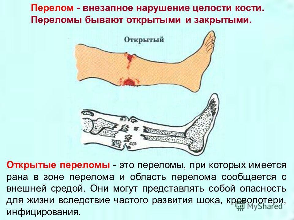 Перелом - внезапное нарушение целости кости. Переломы бывают открытыми и закрытыми. Открытые переломы - это переломы, при которых имеется рана в зоне перелома и область перелома сообщается с внешней средой. Они могут представлять собой опасность для