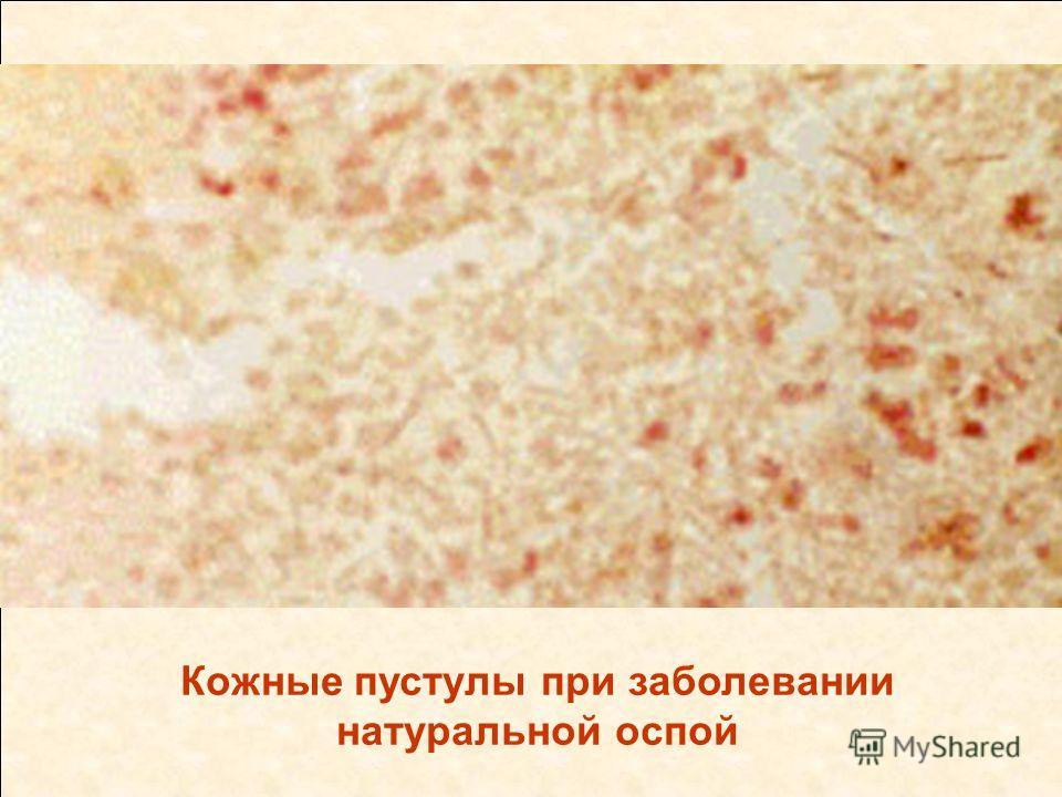 Кожные пустулы при заболевании натуральной оспой