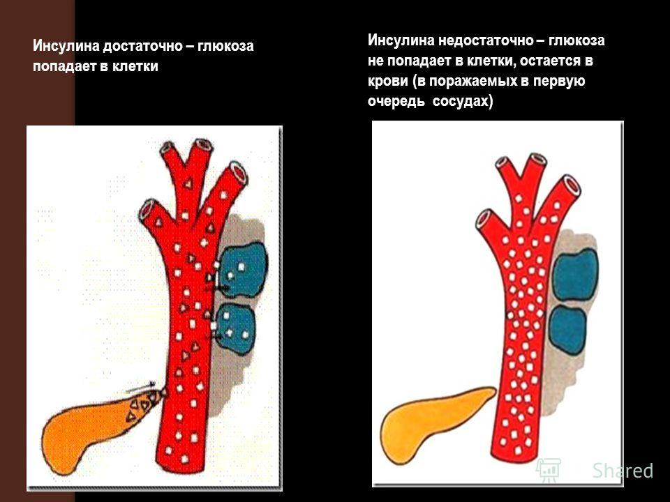 Инсулина достаточно – глюкоза попадает в клетки Инсулина недостаточно – глюкоза не попадает в клетки, остается в крови (в поражаемых в первую очередь сосудах)