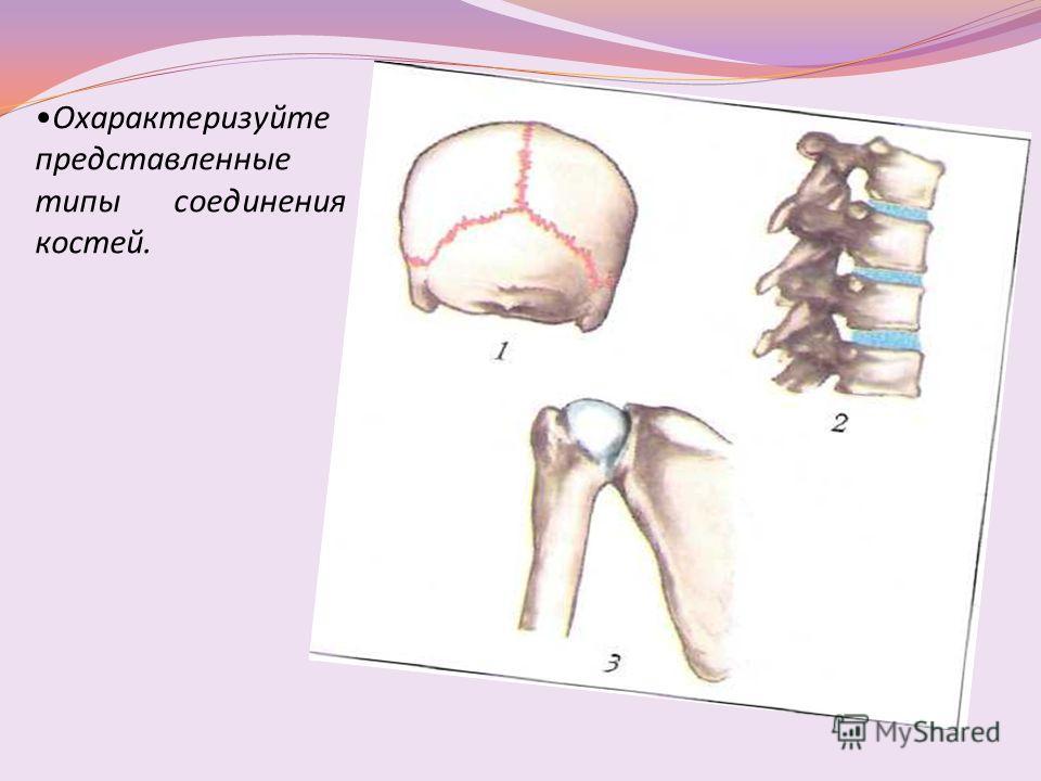 Охарактеризуйте представленные типы соединения костей.