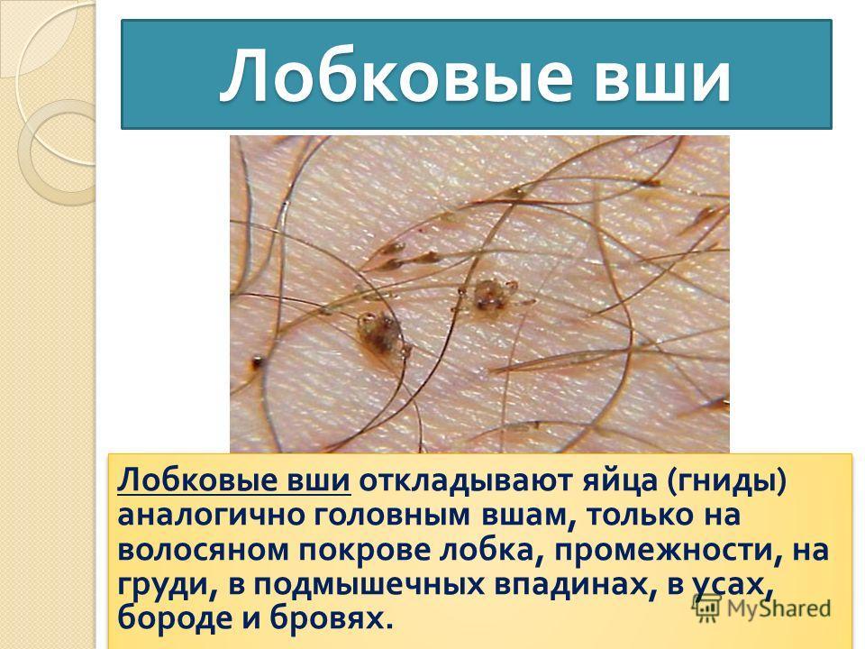 удаление волос на бороде у женщин