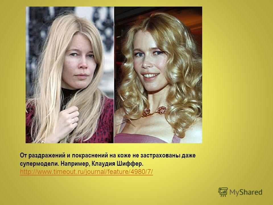 От раздражений и покраснений на коже не застрахованы даже супермодели. Например, Клаудия Шиффер. http://www.timeout.ru/journal/feature/4980/7/ http://www.timeout.ru/journal/feature/4980/7/