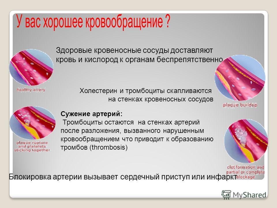 Здоровые кровеносные сосуды доставляют кровь и кислород к органам беспрепятственно Холестерин и тромбоциты скапливаются на стенках кровеносных сосудов Сужение артерий: Тромбоциты остаются на стенках артерий после разложения, вызванного нарушенным кро