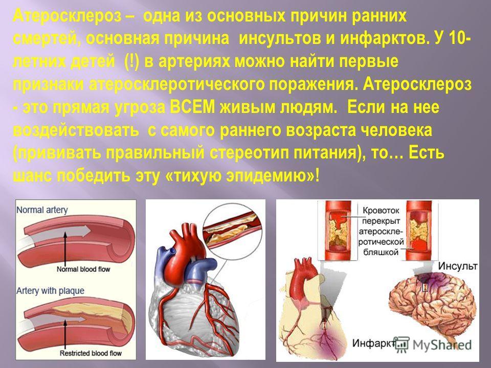 Атеросклероз – одна из основных причин ранних смертей, основная причина инсультов и инфарктов. У 10- летних детей (!) в артериях можно найти первые признаки атеросклеротического поражения. Атеросклероз - это прямая угроза ВСЕМ живым людям. Если на не