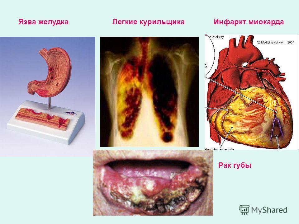 Язва желудкаЛегкие курильщикаИнфаркт миокарда Рак губы